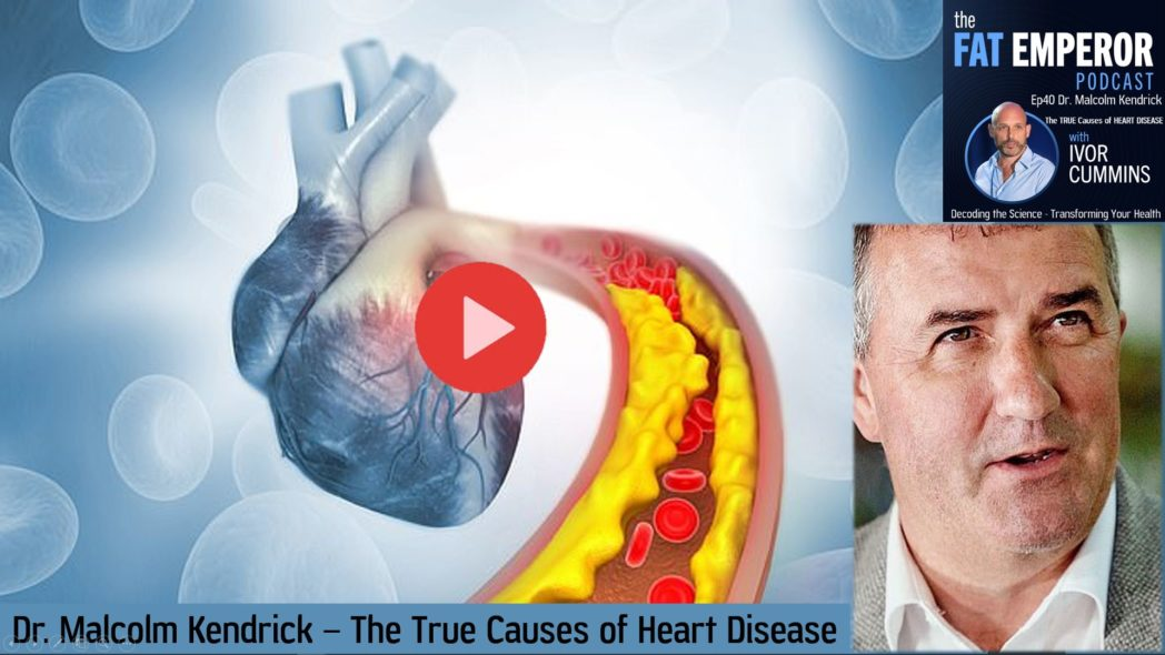 Ep40 Dr. Malcolm Kendrick the True Causes of Heart Disease are Not What You Think
