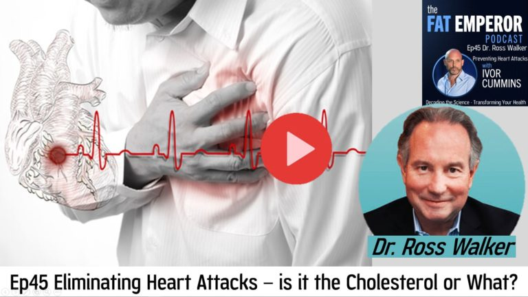 Ep45 Eliminating Heart Attacks – is it the Cholesterol or What?