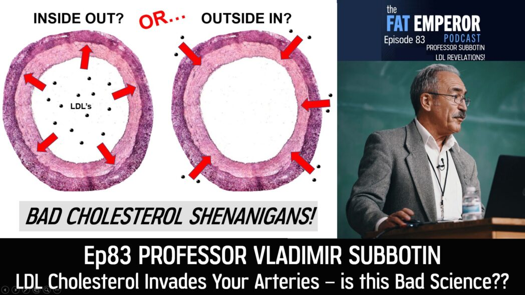 Ep83 LDL Cholesterol Invades Your Arteries - Bad Science or What